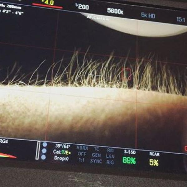 Scary hairy #redepic #wirsinddieguten #skin #video #nude